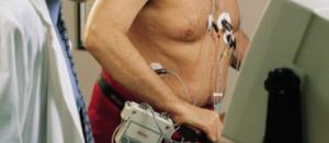 épidémiologie cardiovasculaire