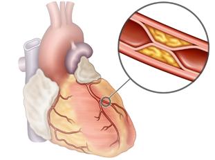 Diabète et risque cardiovasculaire : Le coronarien diabétique