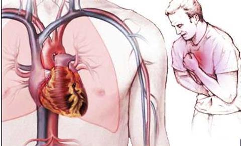 Connaître et anticiper les 5 signes d'une crise cardiaque