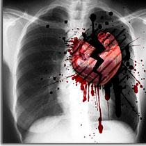 cardiopathie